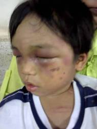 Cháu bé 3 tuổi bị cậu đánh đập dã man, bắt đi ănxin